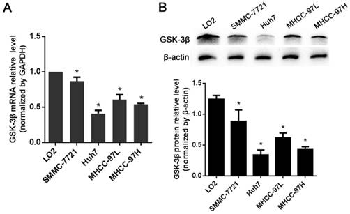 GSK-3β suppresses HCC cell dissociation in vitro by