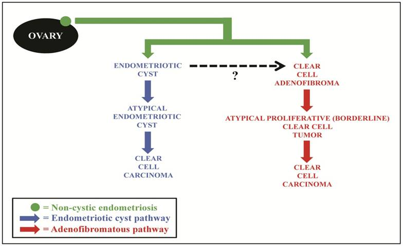 Pathogenesis Of Ovarian Clear Cell Adenofibroma Atypical Proliferative Borderline Tumor And Carcinoma Clinicopathologic Features Of Tumors With Endometriosis Or Adenofibromatous Components Support Two Related Pathways Of Tumor Development