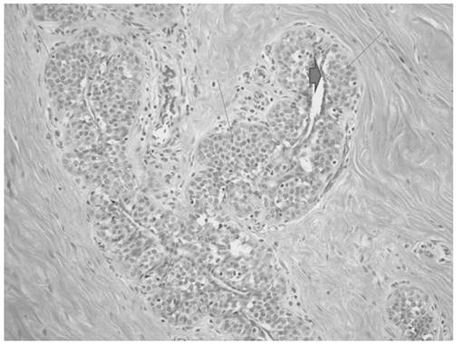 A Case Report: Lobular Carcinoma In Situ in a Male Patient