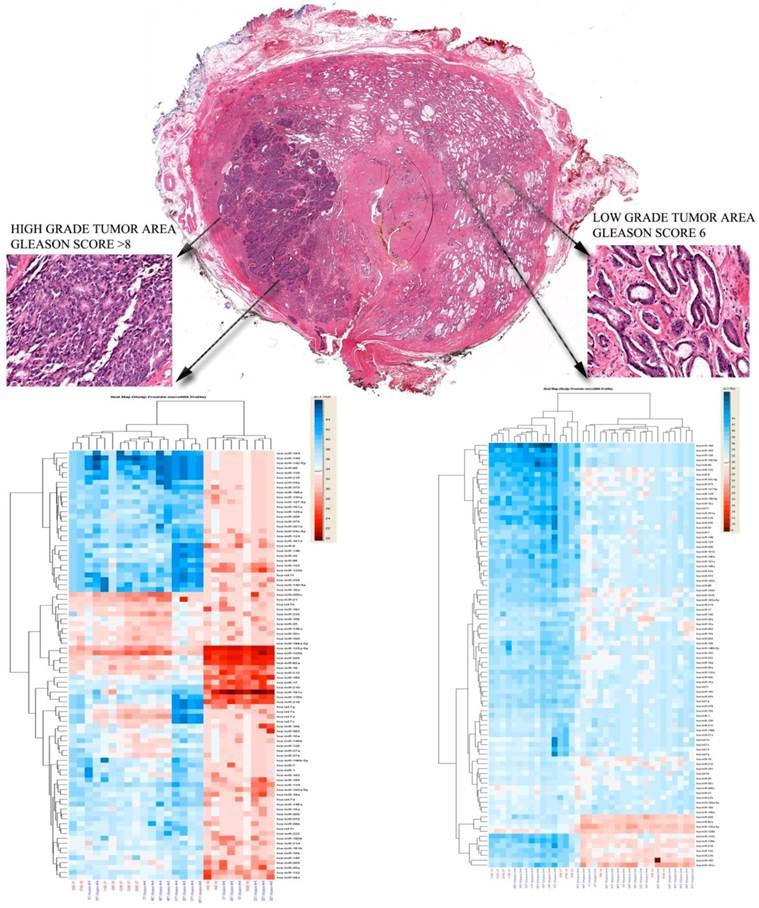 Comprehensive MicroRNA Profiling Of Prostate Cancer