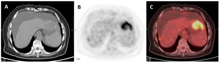 hepatic cancer pet