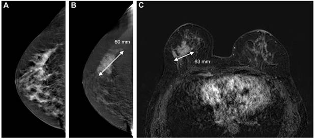 The Quality Of Tumor Size Assessment By Contrast-Enhanced -4416
