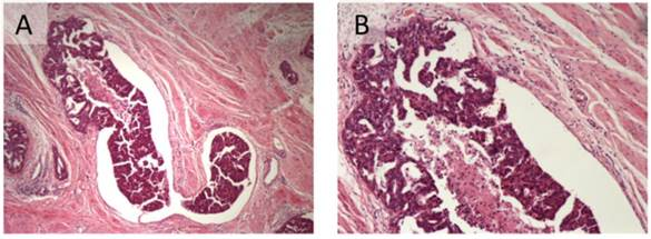 Prognostic Significance Of Lymphovascular Space Invasion In Epithelial Ovarian Cancer