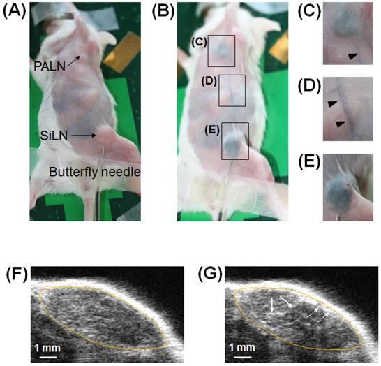 A Novel Treatment Method For Lymph Node Metastasis Using A