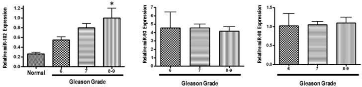 película de cáncer de próstata gleason 13