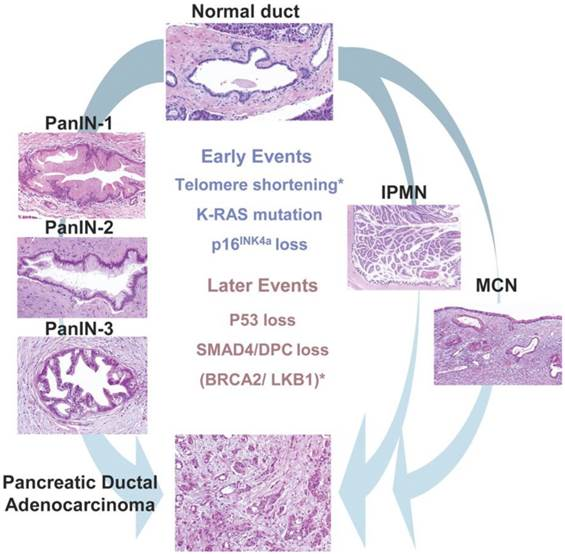 Cancer Of The Pancreas Molecular Pathways And Current