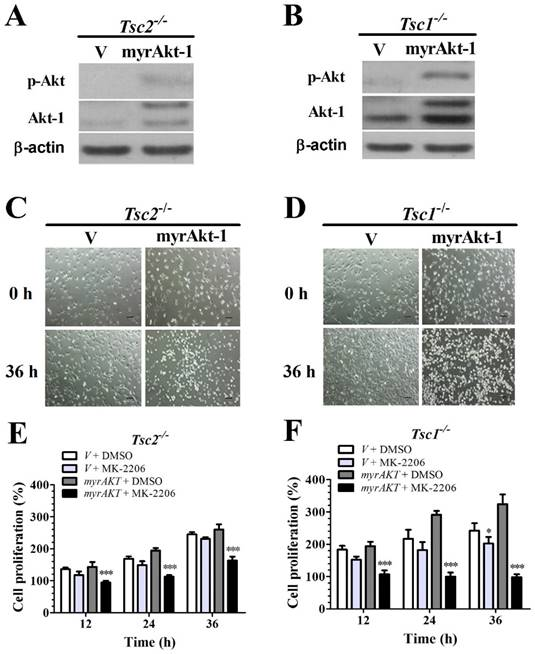 Combined Targeting of mTOR and Akt Using Rapamycin and MK-2206 in