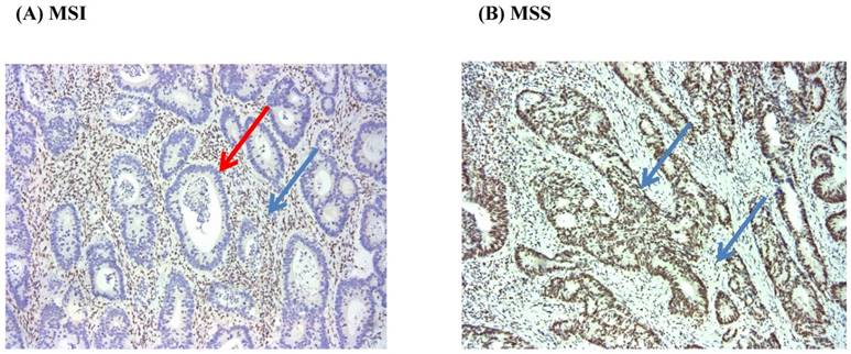 The Impact Of Microsatellite Instability Status And Sidedness Of The Primary Tumor On The Effect Of Cetuximab Containing Chemotherapy In Patients With Metastatic Colorectal Cancer