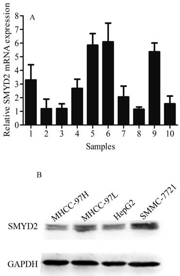 Positive Expression of SMYD2 is Associated with Poor