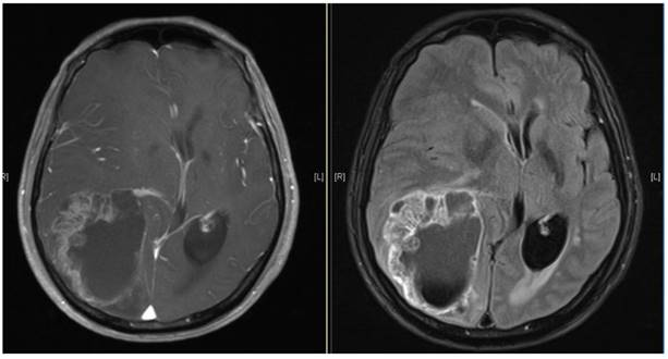 Characteristics And Treatment Of Brain Metastases From Esophageal Squamous Cell Carcinoma