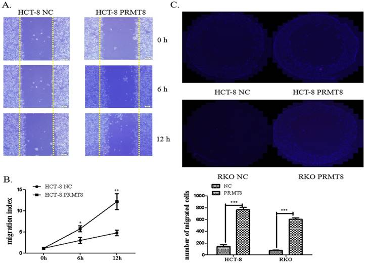 Protein arginine methyltransferase 8 gene enhances the colon cancer
