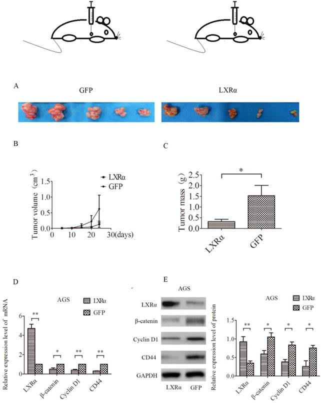 LXRα Promotes the Differentiation of Human Gastric Cancer