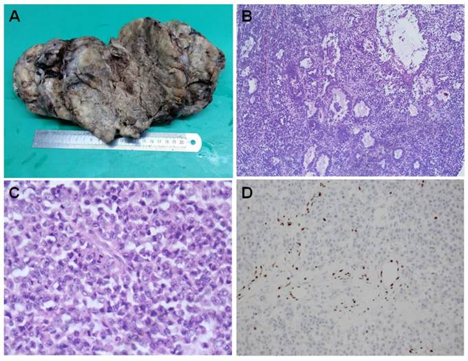 An In Depth Look At Small Cell Carcinoma Of The Ovary Hypercalcemic Type Sccoht Clinical Implications From Recent Molecular Findings