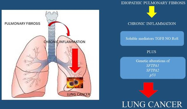 Scar tissue to lung cancer