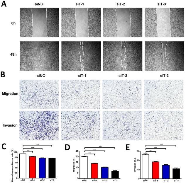 The Fibroblast TIAM2 Promotes Lung Cancer Cell Invasion and Metastasis