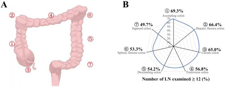 Impact Of Tumor Site On Lymph Node Status And Survival In Colon Cancer