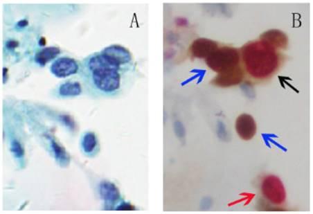 hpv p16 ki 67 simptomele mărgelelor de panglică