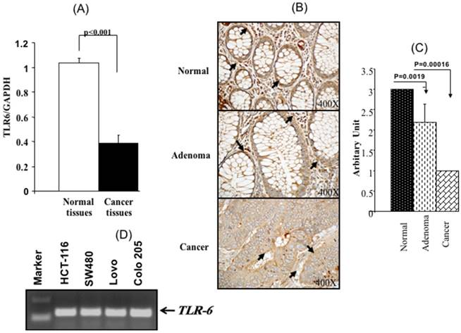 Toll Like Receptor 6 Expression Sequence Variants And Their Association With Colorectal Cancer Risk