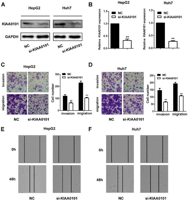 KIAA0101 is a novel transcriptional target of FoxM1 and is
