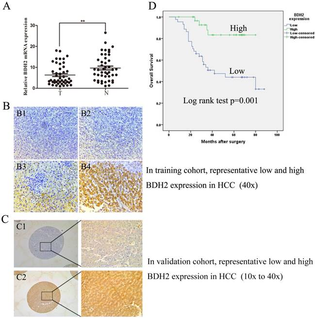 BDH2 is downregulated in hepatocellular carcinoma and acts as a