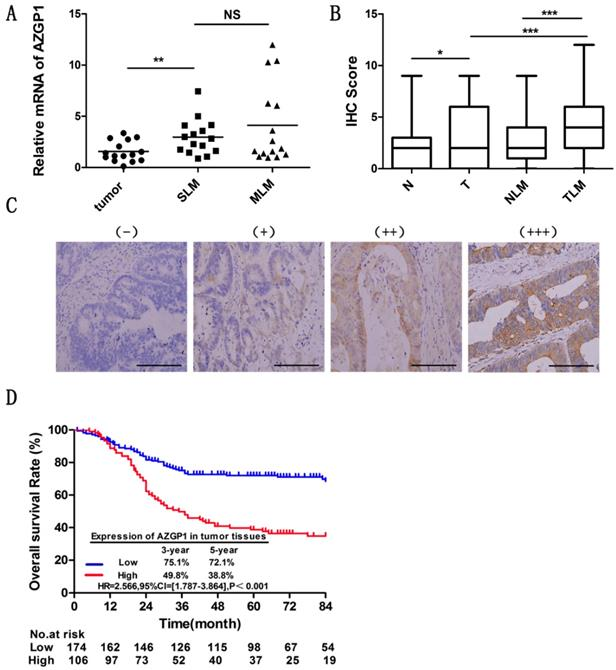Zinc-α2-glycoprotein 1 promotes EMT in colorectal cancer by