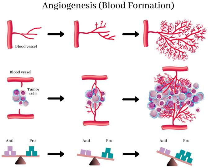 Angiogenesis in Breast Cancer Progression, Diagnosis, and Treatment